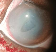 лечить воспаленный глаз собака