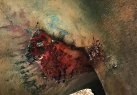 рана без швов